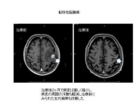 写真:転移性脳腫瘍、治療前、治療後、治療後2カ月で病変は著しく縮小し病変の周囲の浮腫も軽減し治療前にみられた右片麻痺も改善した