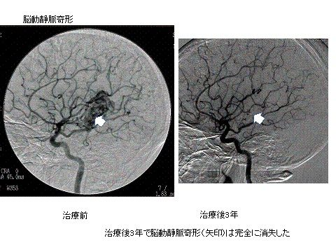 写真:脳動静脈奇形、治療前、治療後3年、治療後3年で脳動静脈奇形は完全に消失