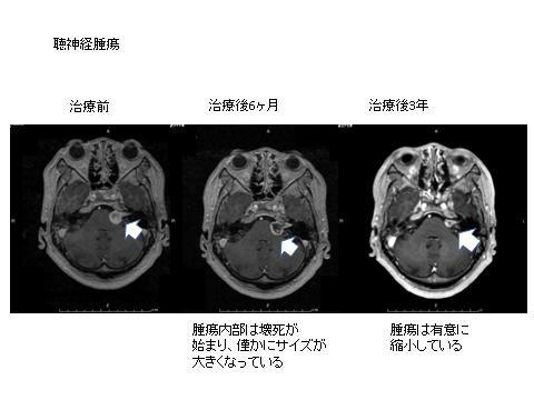 写真:聴神経腫瘍、治療前、治療後6カ月、治療後3年、6カ月で腫瘍の壊死が始まり、3年で腫瘍が縮小