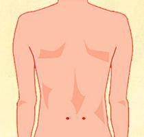 イラスト:手術跡のイメージ