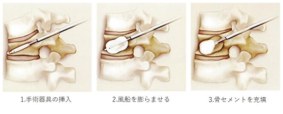 治療イメージのイラスト、1.手術器具の挿入、2.風船を膨らませる、3.骨セメントを充填