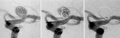 レントゲン写真:コイル塞栓術の様子