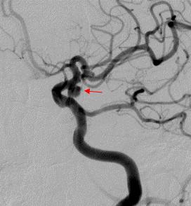 レントゲン写真:脳動脈瘤のある脳血管の様子