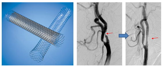 写真:頸動脈ステントと血管内治療