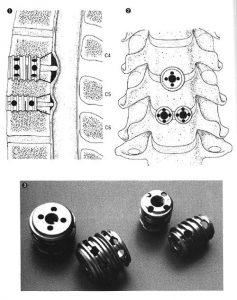 イラスト:頚椎症、頚椎椎間板ヘルニアに対する頚椎前方固定術