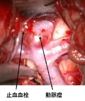 写真:血栓の様子、写真左側に止血血栓、右側に動脈瘤がある