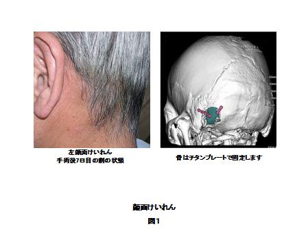図1:左顔面けいれんの手術後7日目の創の状態の写真と骨をチタンプレートで固定するイラストイメージ