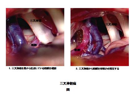 図:三叉神経痛の治療写真