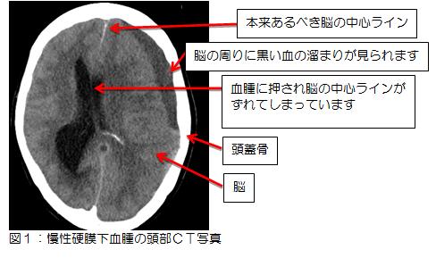 図1:慢性硬膜下血腫の頭部CT写真