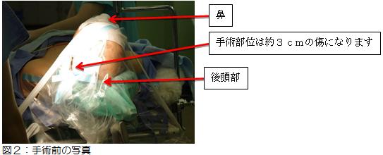 図2:手術前の写真