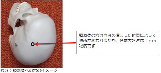 図3:頭蓋骨への穴のイメージ写真