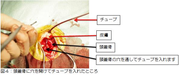 図4:頭蓋骨に穴を開けてチューブを入れた様子の写真