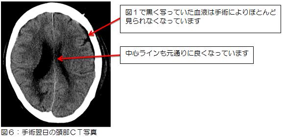 図6:手術翌日の頭部CT写真