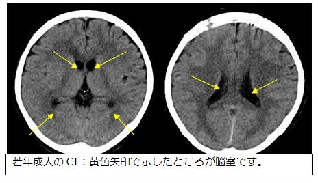 CT写真:脳室の様子