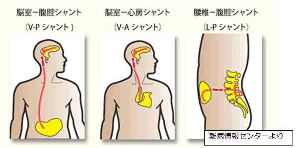 イラスト:シャント手術の比較