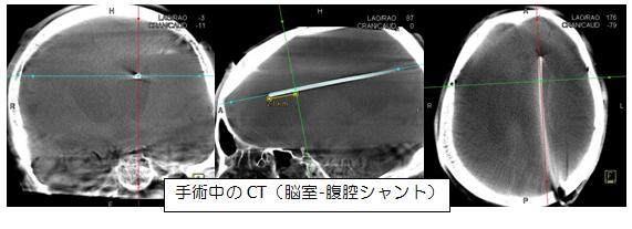 CT写真:脳室・腹腔シャントの手術中の様子