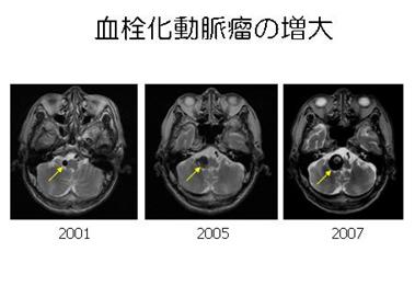 写真:血栓化動脈瘤が経年により増大する様子