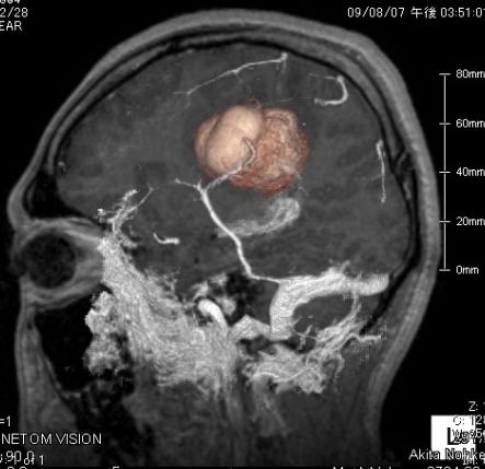 海綿状血腫の写真1