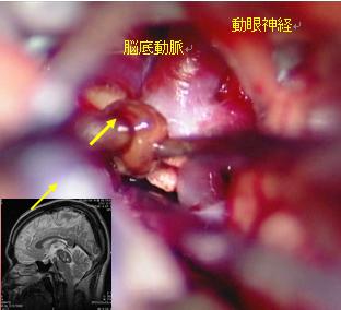 海綿血管腫摘出の写真1