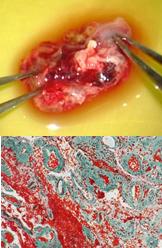 海綿血管腫摘出の写真2