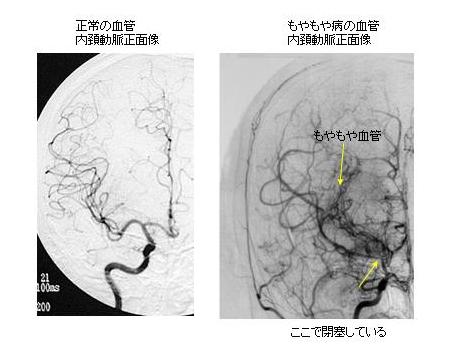 写真:正常の血管ともやもや血管の比較