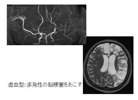 写真:もやもや血管の様子1、虚血型、多発性の脳梗塞をおこす