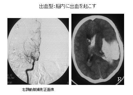 写真:もやもや血管の様子1、出血型、脳内に出血をおこす