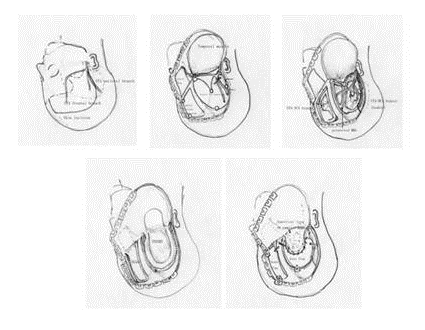 イラスト:手術の概要