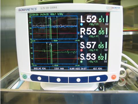 頸動脈血栓内膜剥離術の写真2