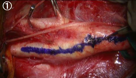 写真:手術の手順(1)