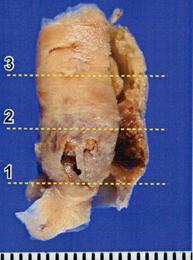 写真:摘出した内膜組織1、写真下より1,2,3と3等分し、次の写真で示す