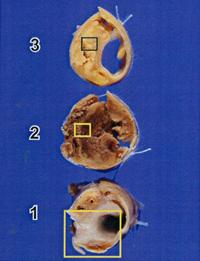 写真:摘出した内膜組織2、写真下より1,2,3と先の写真を3等分した内膜組織の断面