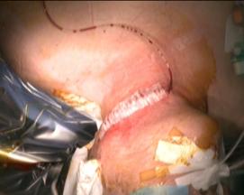 写真:手術後の様子1