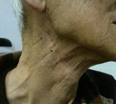 写真:手術後の様子2