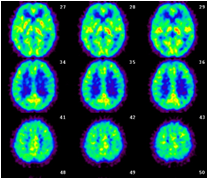 写真:脳血流PET検査(安静時)