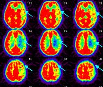 写真:脳血流PET検査(ダイアモックス負荷時)