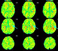 写真:脳血流PEt検査(酸素摂取率)