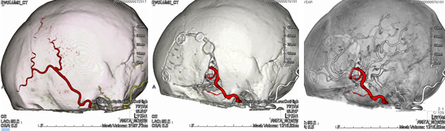 イラスト:浅側頭動脈2