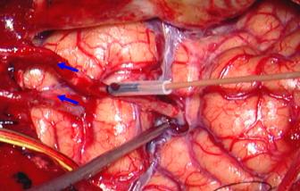 写真:バイパス血管の流速音を確認している様子