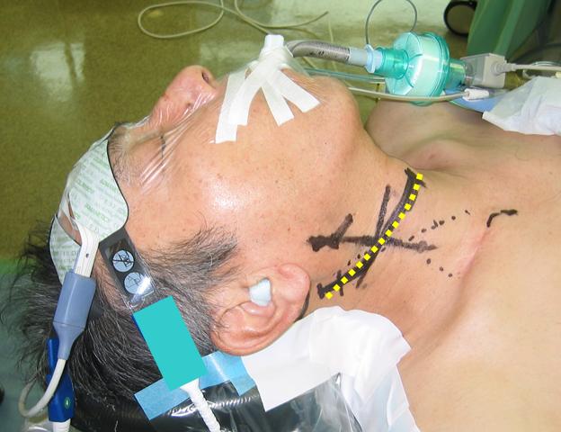 頸動脈血栓内膜剥離術の写真1