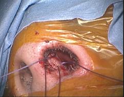 写真:ハーディ手術5