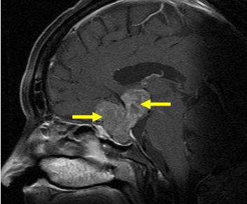 写真:下垂体腺腫2