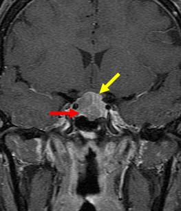 写真:下垂体腺腫3