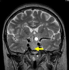 写真:MRI2