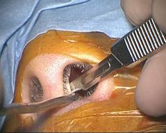 写真:ハーディ手術1