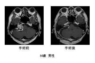 写真:手術前後の比較、54歳男性の例