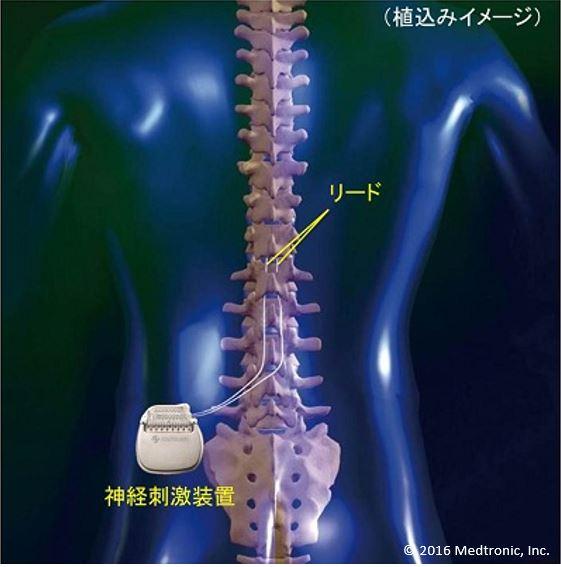 イラスト:脊髄刺激療法のイメージ図