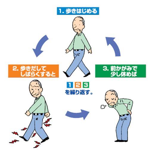 イラスト:腰部脊柱管狭窄症の症状、(1)歩きはじめる、(2)歩きだしてしばらくすると痛み出す、(3)前かがみで少し休めば改善される、を繰り返す